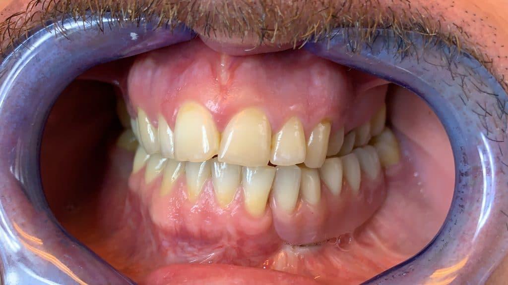 Implantes dentales monocorticales subperiósticos impresos en 3D. Dr. Joel Joshi Otero